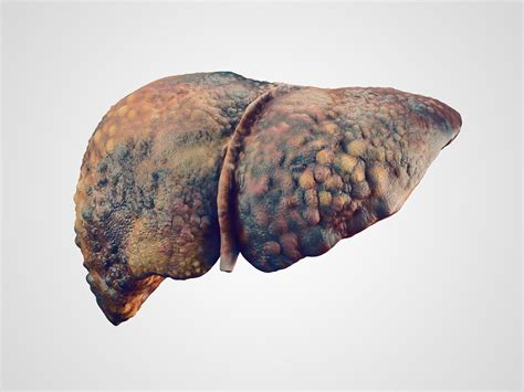 Counteract Weakness Liver Cancer Detox by Statins Reduce Risk Of Cirrhosis Decompensation In Hbv Hcv