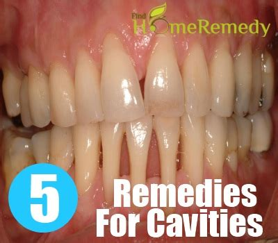 5 home remedies for cavities treatments cure