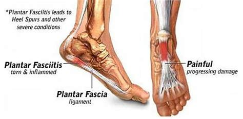 What Causes Planters Fasciitis by What Causes Plantar Fasciitis Marion County Podiatry