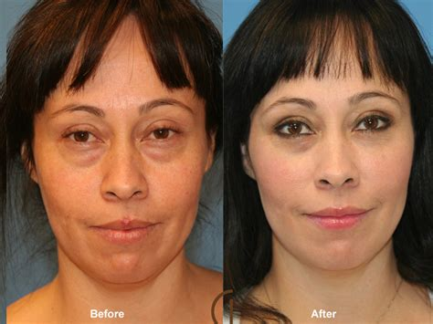 fat grafting plastic surgery before and after fat grafting to face gallery orange