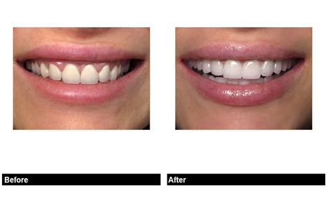 perfect porcelain veneer tooth shapes    smile