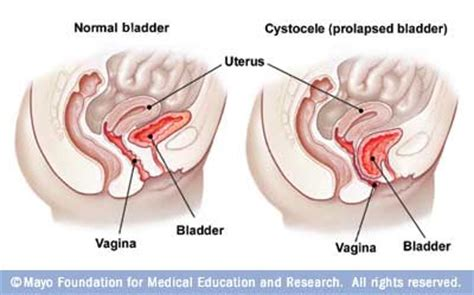 prolapse and bladder weakness jean hailes anterior prolapse cystocele disease reference guide