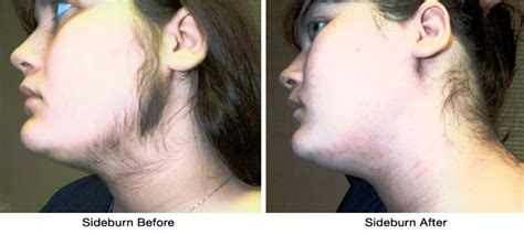 how should a womans sideburns look lasers have been used for many years for a variety of