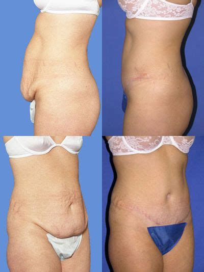 Detox Icunt Plastic Surgery by Tummy Tuck Abdominoplasty Before And After Photo Tummy