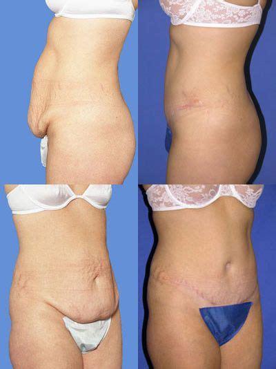 mommy makeover after c section 29 b 228 sta bilderna om tummy tuck pics p 229 pinterest vikter