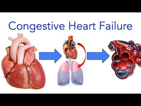 congestive failure congestive failure chf explained made easy