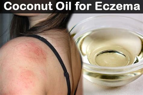 how to use coconut for eczema