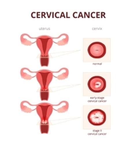 cervical cancer diagram schematic vector images 1 400