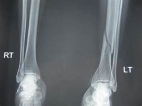 tibial plafond fractures orthobullets