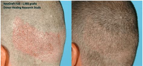 dr bauman offers no linear scar hair transplants with linear scar hair transplant linear scar hair transplant