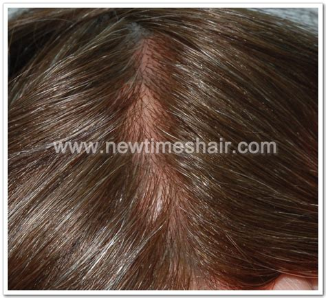 invisible part for thin hair human hair injected hair super thin skin invisible toupee