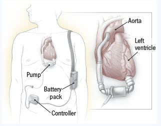 How does an LVAD work? - Ask Doctor K - Ask Doctor K ... Lvad Clinic
