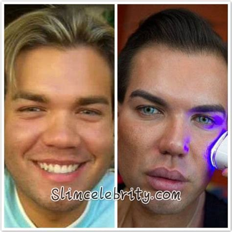 human ken doll before and after 89 best images about celebrity plastic surgery before and