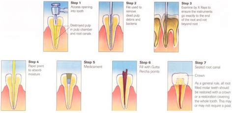 Cost Dental Crowns Root Canal Treatment India Indicure