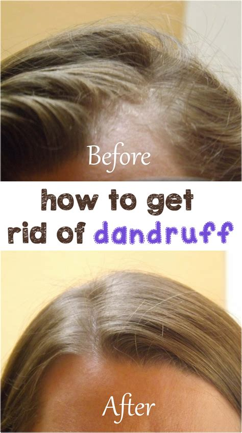 Do Hair Dryers Cause Dandruff how to get rid of dandruff by magazinez net
