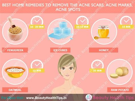 how to get rid of acne scars how to remove acne scars