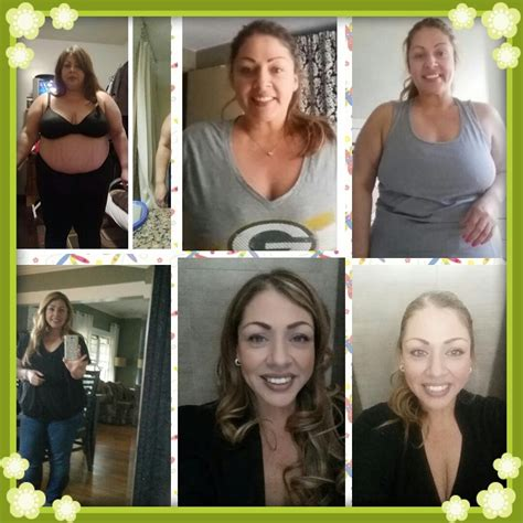 gastric bypass testimonials success stories with before maria prieto gastric sleeve testimonial success story