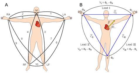pediatric lead placement diagram pediatric ekg lead placement diagram arterial line