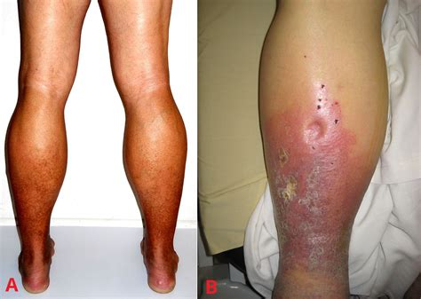 varicose veins treatment symptoms causes pictures varicose veins clinical features management