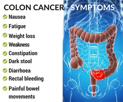 Colon Cancer Without Blood In Stool by Colon Cancer Causes Diagnosis And Treatment