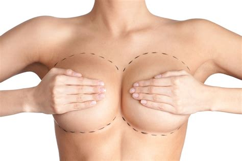 Breast Lift breast lift discover new self confidence