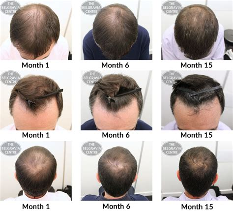 male pattern baldness hair loss rate belgravia hair loss blog