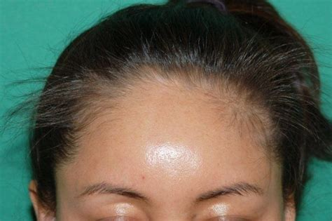 hairstyles for women frontal hair loss 2141 grafts by dr konior hair loss surgery before and