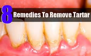 how to remove tartar from teeth at home 8 home remedies to remove tartar health care a to z
