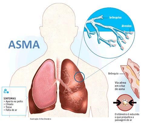 Obat Batuk Kronis Yang Alami obat asma alami dengan pengobatan herbal alami uh dan