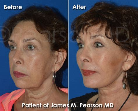haircuts that help disguise or lift face neck lift dr james pearson facial plastic surgery