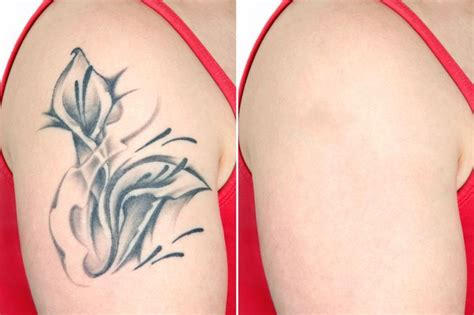 tattoo removal in delhi 11 best removal in dwarka delhi images on