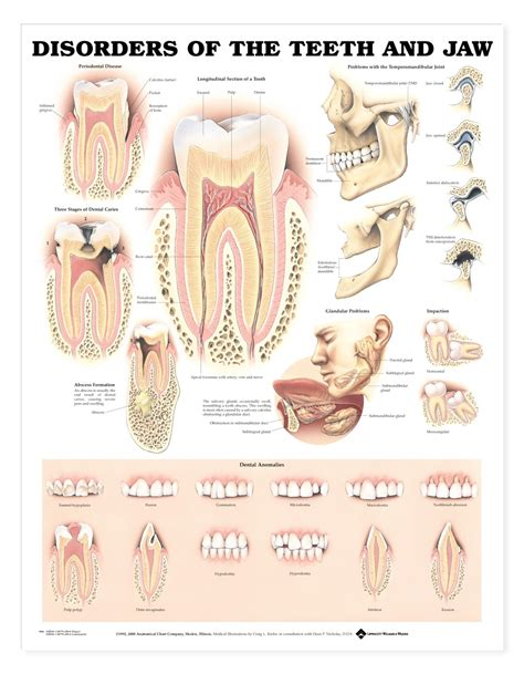 teeth of the disorders of the teeth and jaw anatomical chart anatomy models and anatomical charts