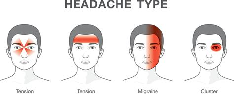 And Migraines Is It In Your by Migraine Vs Headache Where Does It Differ Migraine