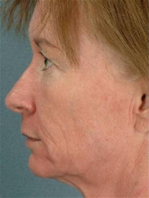 Saggy Solutions by Saggy Skin Jowl Skin Treatments Sydney Cosmetics