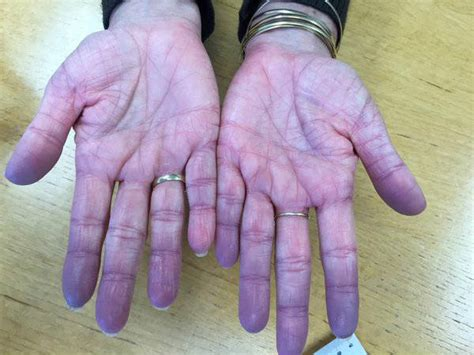bluish coloration of the skin what is cyanosis aid for free