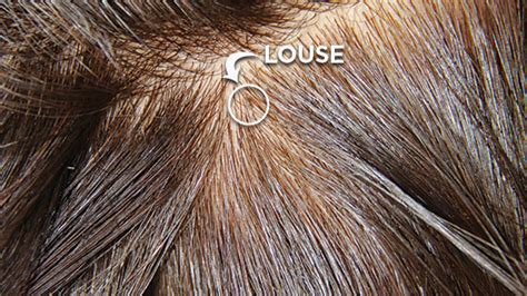 what color is lice what do lice look like the is kinda gross but necessary
