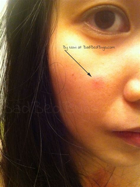 pic  bite  novis face