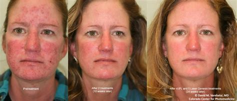 e one ipl session before and after on man and woman face laser genesis skin rejuvenation for glowing skin