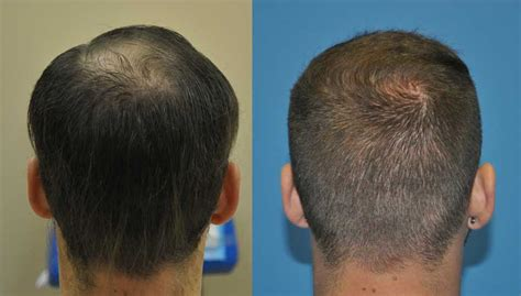 haircut after hairtramsplant case study 3000 grafts in one fue hair transplant session