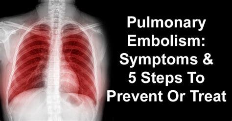 5 Steps To Prevent Winter Pulmonary Embolism Symptoms 5 Steps To Prevent Or Treat David Avocado Wolfe