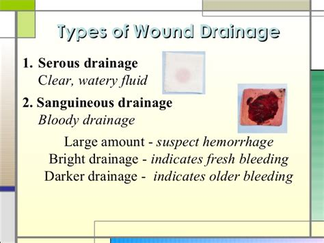 serous drainage color wound healing and care presentation