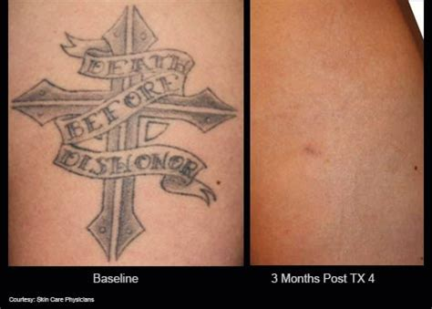 tattoo removal penrith the cosmedic room laser tattoo removal penrith
