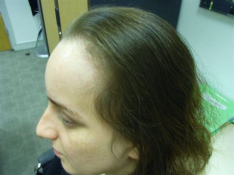 haircuts for women with alopecia haircuts for women with alopecia black women with