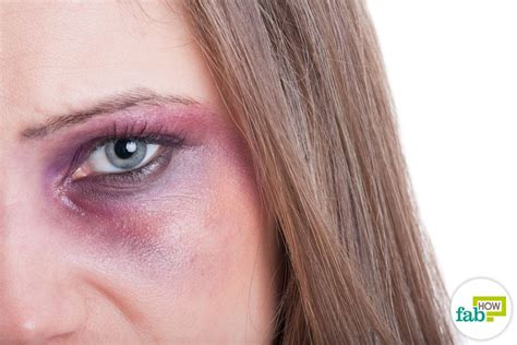 Black Yes how to get rid of a black eye fast and safely fab how