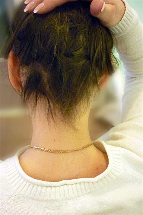 male pattern hair loss patient uk the 25 best alopecia universalis ideas on pinterest