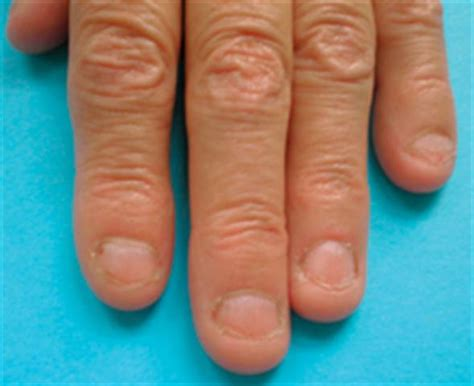 Behaviour Modification Nail Biting by What Is Onychophagy Health Nails Magazine