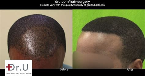 hair transplant tools video best tool for fue hair transplant for black men