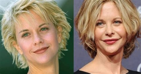 post plastic surgery meg ryan hairstyles meg ryan plastic surgery disaster celebrity plastic