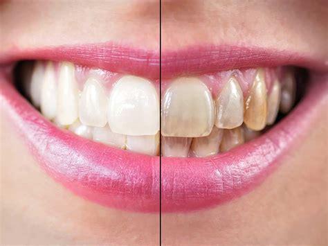 orthodontics merrion square dental