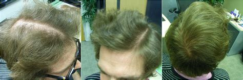 male pattern hair loss cure the hair centre male pattern hair loss treatment